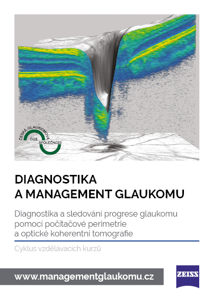 Diagnostika a management glaukomu